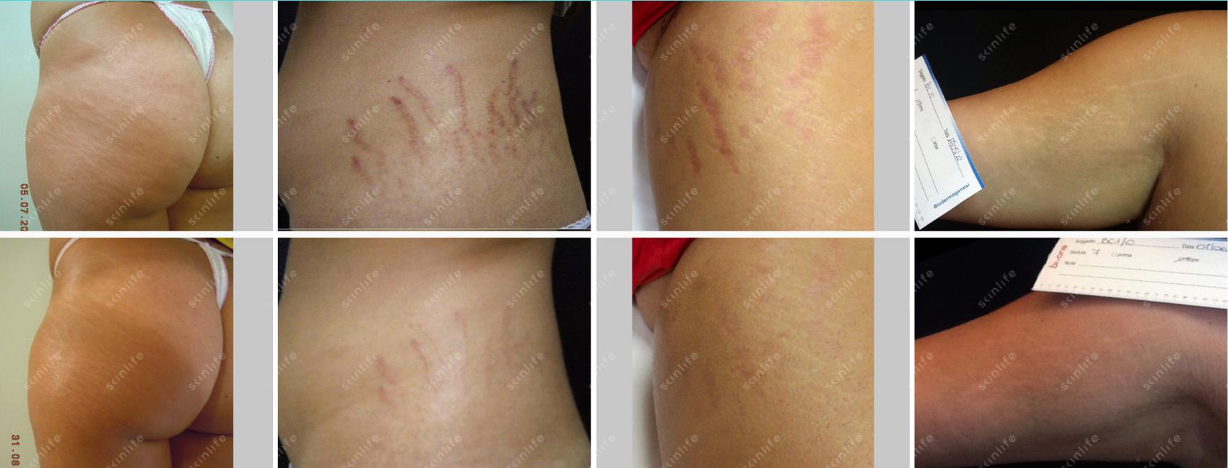 Prima e dopo trattamento corpo con Skinlife
